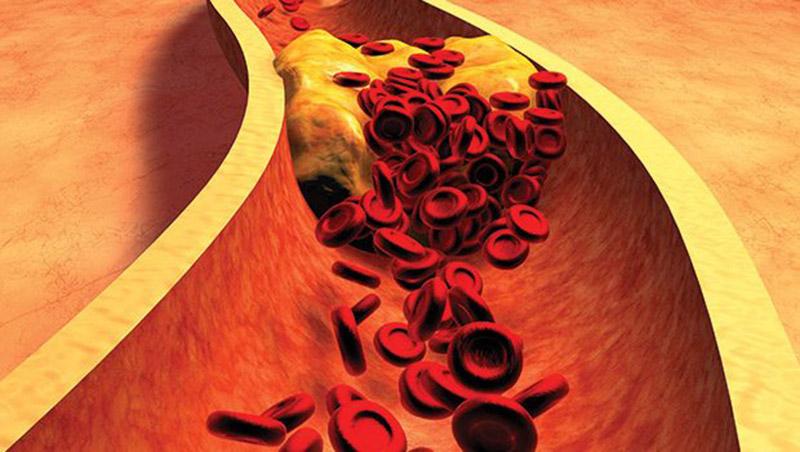 Naj holesterol ne bo težava - koliko si lahko pomagate s prehrano?    Moja-lekarna.com   Spletna lekarna