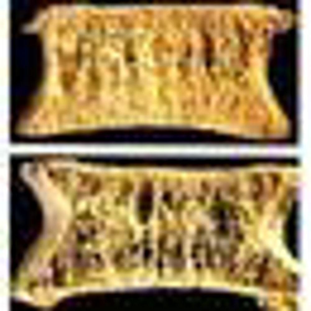 Slika za kategorijo DNK test za osteoporozo