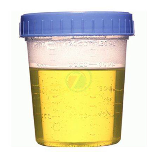Lonček za urin, sterilen