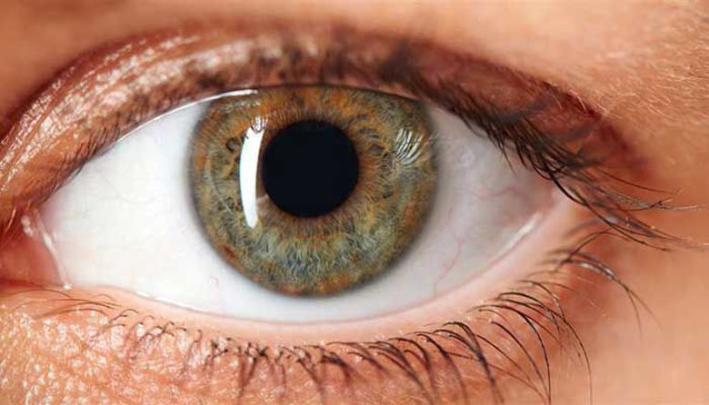 Picture of Diabetična retinopatija!