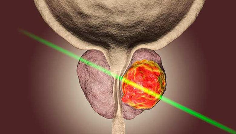 Picture of Fitoterapija benigne hiperplazije prostate