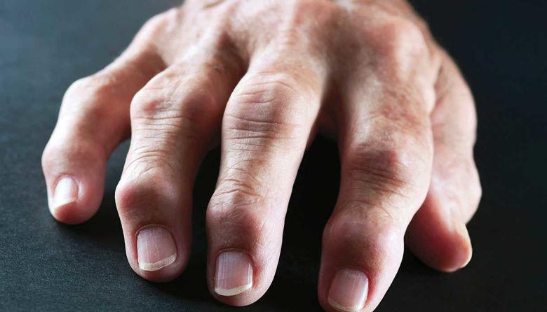 Picture of Revmatoidni artritis