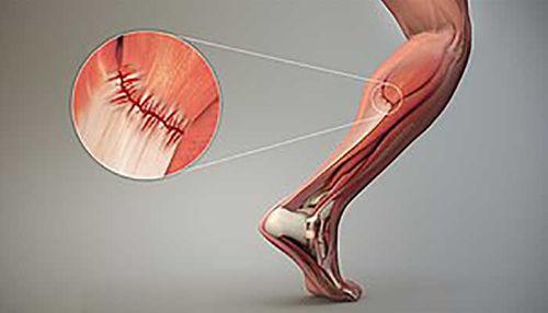Poškodba mišice ter nadalnja športna aktivnost!