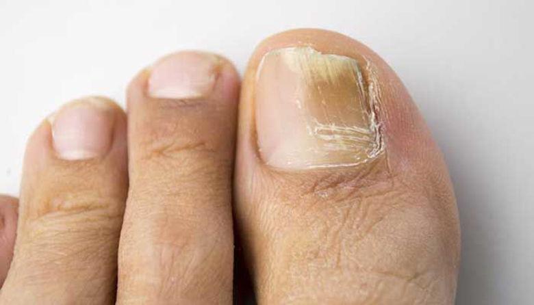 Picture of Glivice na hohtu ter vlažna koža med prsti na nogi!