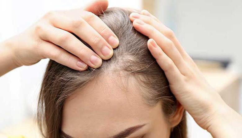 Picture of Alopecija in izpadanje las!