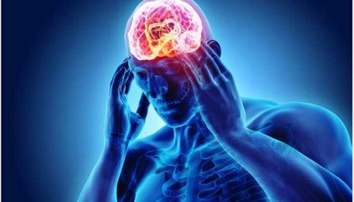 Migrena ali samo navaden glavobol?
