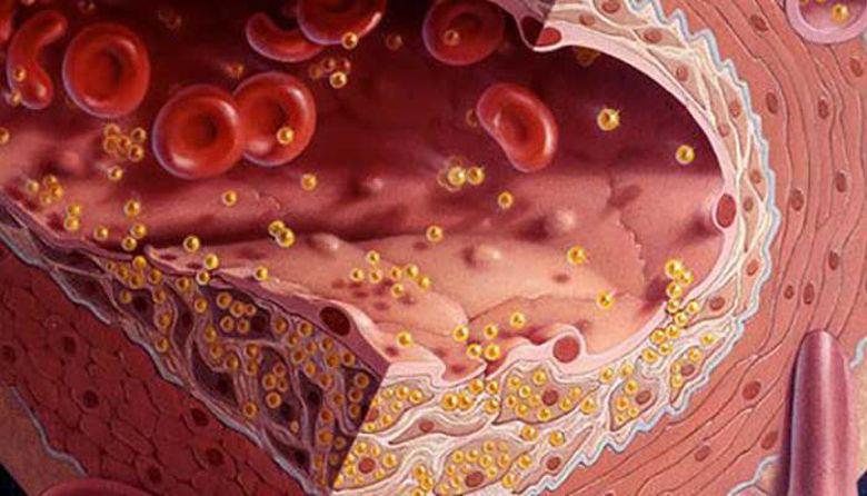 Picture of Previsoka telesna teža, holesterol in ali si je moč pomagati s homeopatijo!