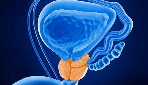 Benigno povečane prostate - simptomi spodnjih sečil in fitoterapija!