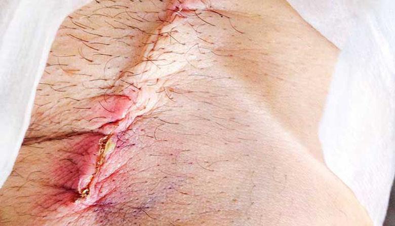 Picture of Rana, ki se ne zaceli! Operacija na nogi.