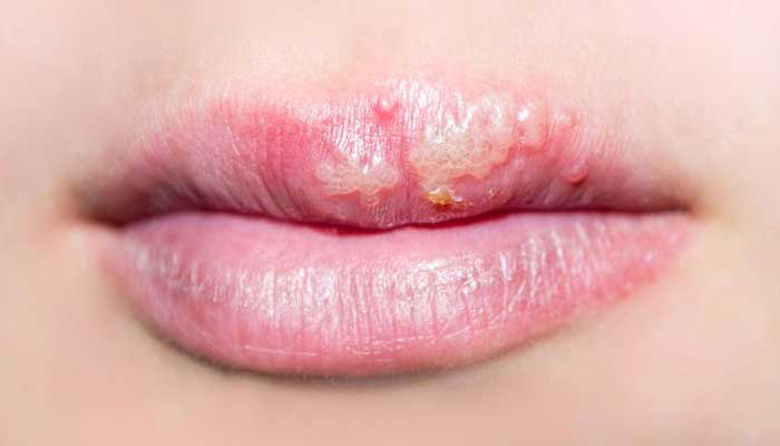 Picture of HERPES