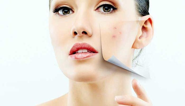 Picture of Problem s kožo in znižano imunsko odpornostjo!